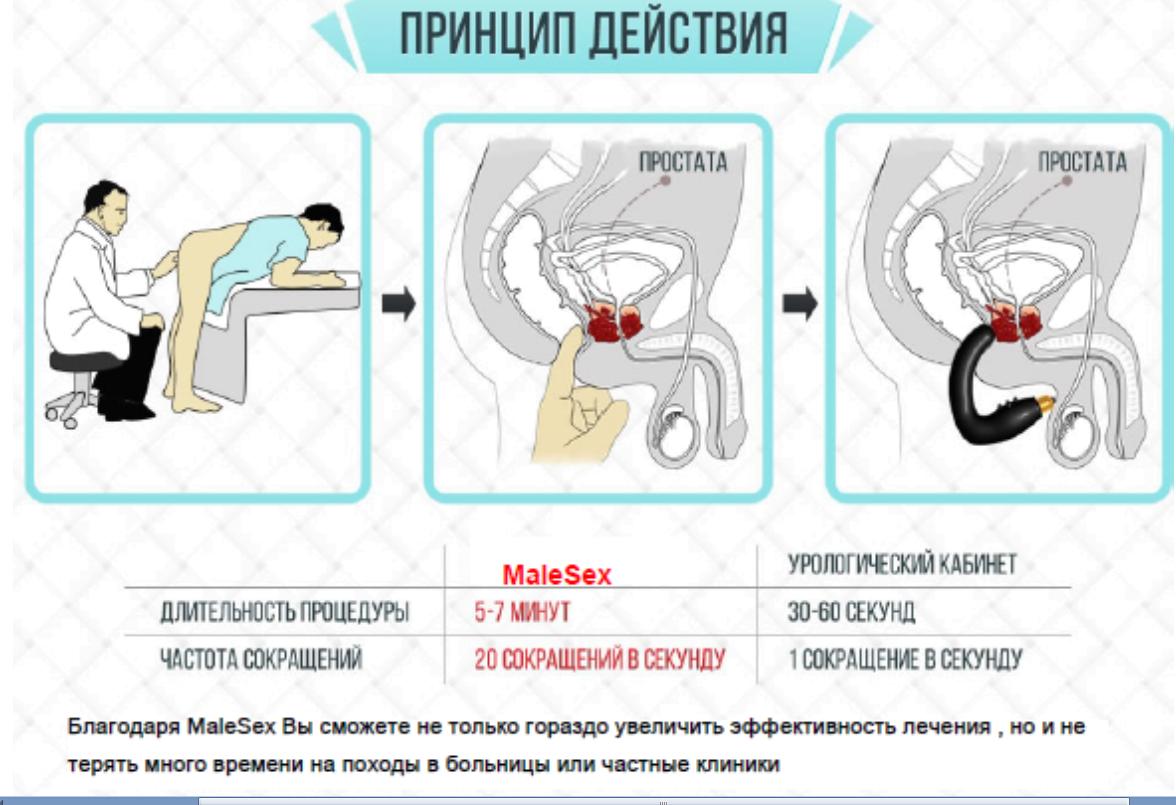 Массаж простаты массажером отзывы простатит злокачественная аденома